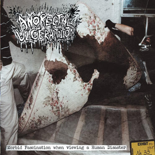 BLP 208 ANORECTAL ULCERATION - Morbid Fascination When Viewing A Human Disaster